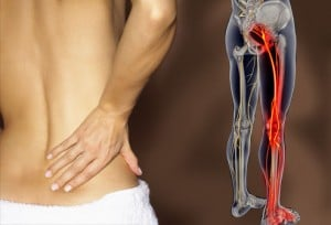 Sciatica Pain